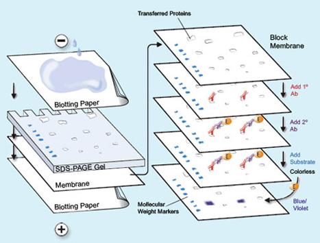 تکنیک بلاتینگ, تکنیک وسترن بلاتینگ, وسترن بلات(Western blot) , تست وسترن بلات , یک روش بسیار اختصاصی , شناسایی و سنجش بیان پروتئین,  آنتی بادی اختصاصی , وزن مولکولی , روش های ایمونو اسای ,الیزا , ایمونوفلوروسنت , تست HIV , مثبت , کاربرد وسترن بلات , مقاله وسترن بلات , وسترن بلات:pdf , پروتکل وسترن بلات , روش وسترن بلات pdf , وسترن بلات ppt, ساترن بلات, انواع بلاتینگ , غشاهای مورد استفاده در بلاتینگ,  روش انتقال در تانک, مواد لازم جهت انجام تکنیک ایمونوبلات , انتخاب بافر در الکتروبلات, رنگ آمیزی عمومی پروتئین ها در غشا, رنگ آمیزی قابل برگشت با پانسو- اس, رنگ آمیزی قابل برگشت با آمیدوبلک, رنگ آمیزی غیر قابل بازگشت با کوماسی بلو , رنگ آمیزی غیر قابل برگشت با آمیدوبلک, رنگ آمیزی مارکرهای پروتئینی, تشخیص اختصاصی پروتئین ها در غشا, تشخیص با آنتی بادی